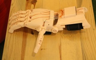 Prosthetic 3D printed hand