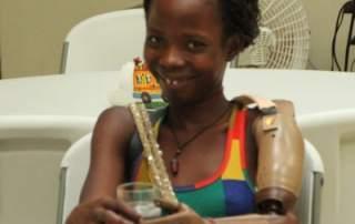Haitian mother gets prosthetic limb from Create Prosthetics