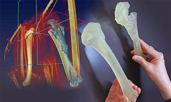 bald-eagle-fly-again-thanks-3d-printed-surgical-guides-2