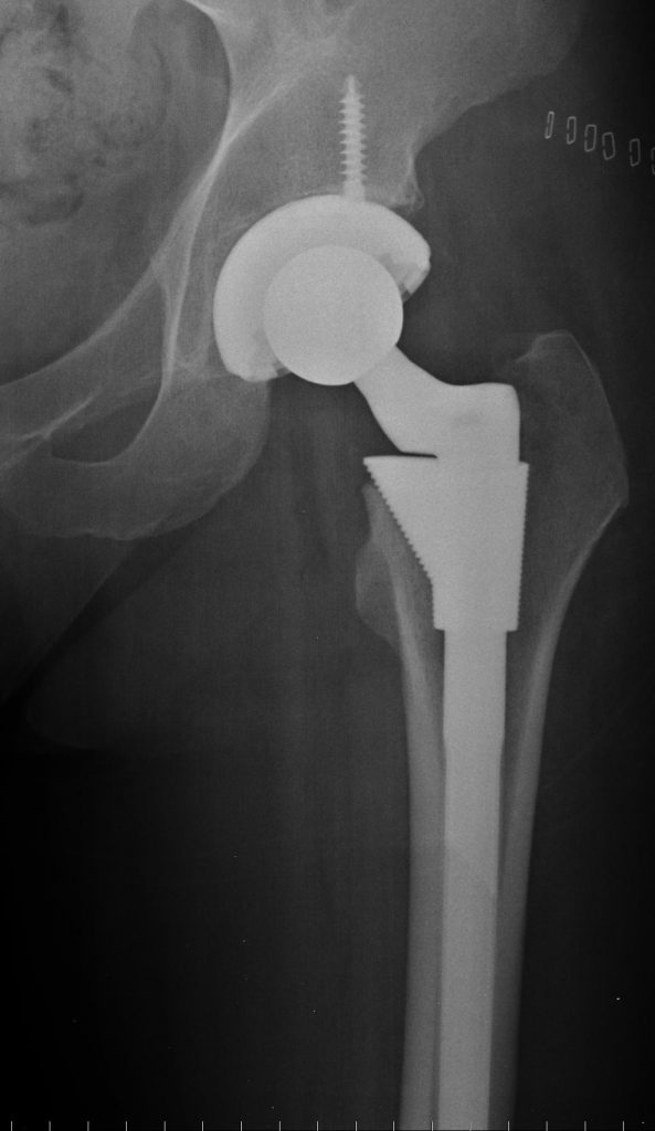 A hip replacement could contain all manner of 3D printed parts