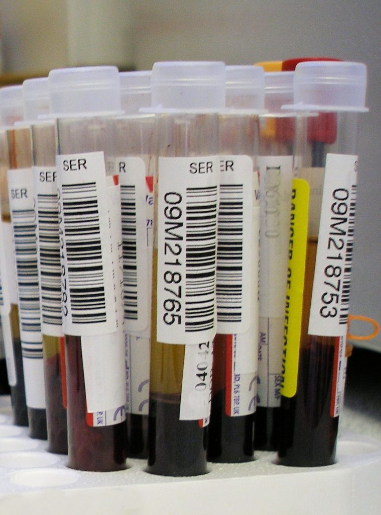 A hacked 3D printer can process blood tests