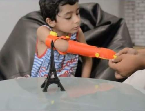 5 year old gains a 3Dp hand with UnLimbited potential