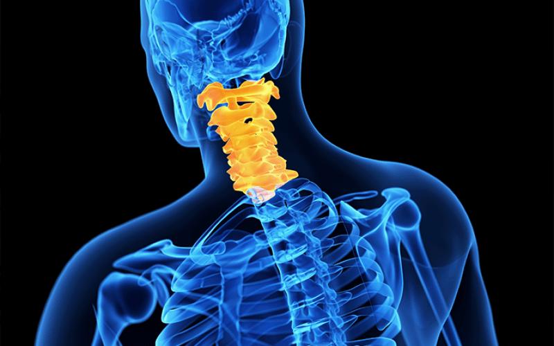Image: spinalsurgerynews