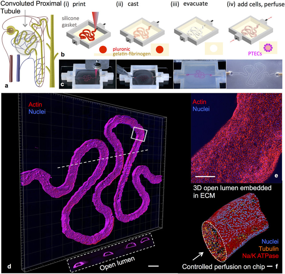 3D convoluted renal proximal tubule on chip. Image via Nature's Scientific Reports journal