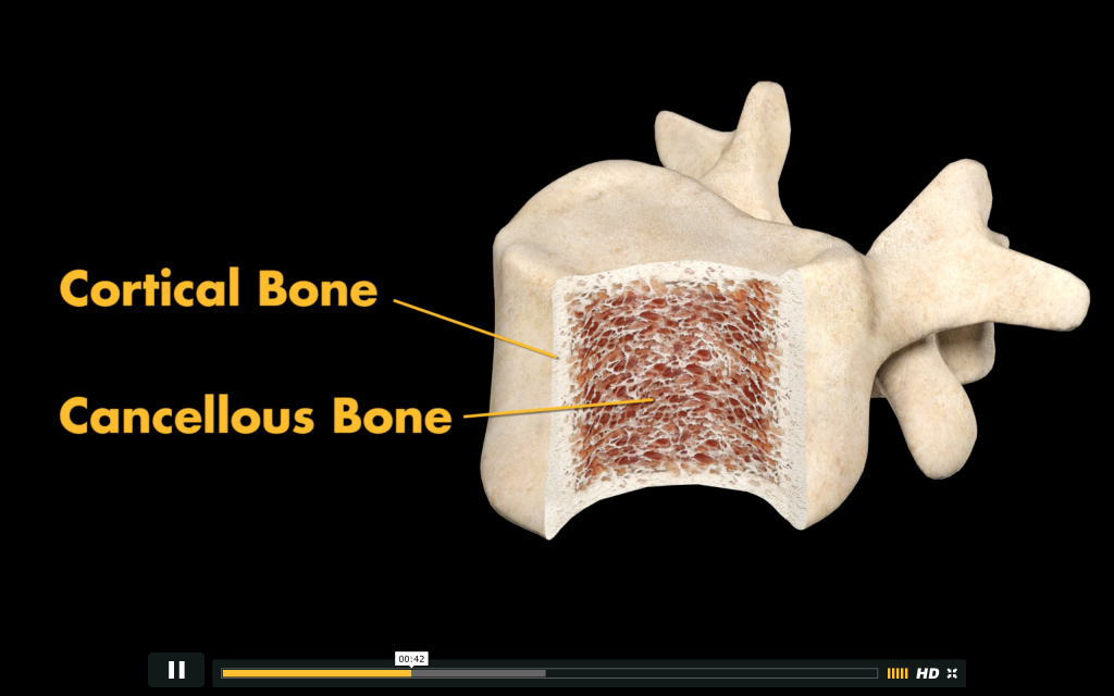 The structure of a bone. Dense cortical outer-shell and the spongy, cancellous inner. Image via: Stryker