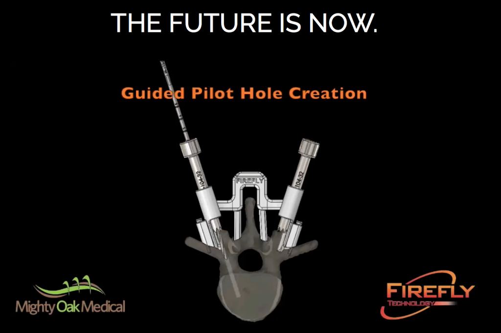 Screenshot showing how the 3D printed Firefly Technology guides aid with the creation of pilot holes in the bone. Image via: Might Oak Medical