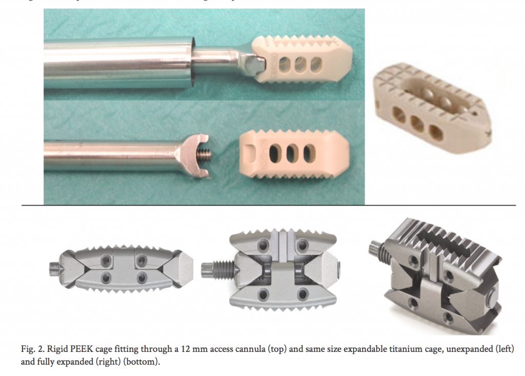 An example of PEEK (top) and titanium (bottom) lumbar cages used in spinal surgery Image via: Rudolf and Christian Morgenstern