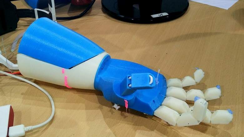 The 3D printed bionic arm by Rishabh Java. Image via: khaleejtimes