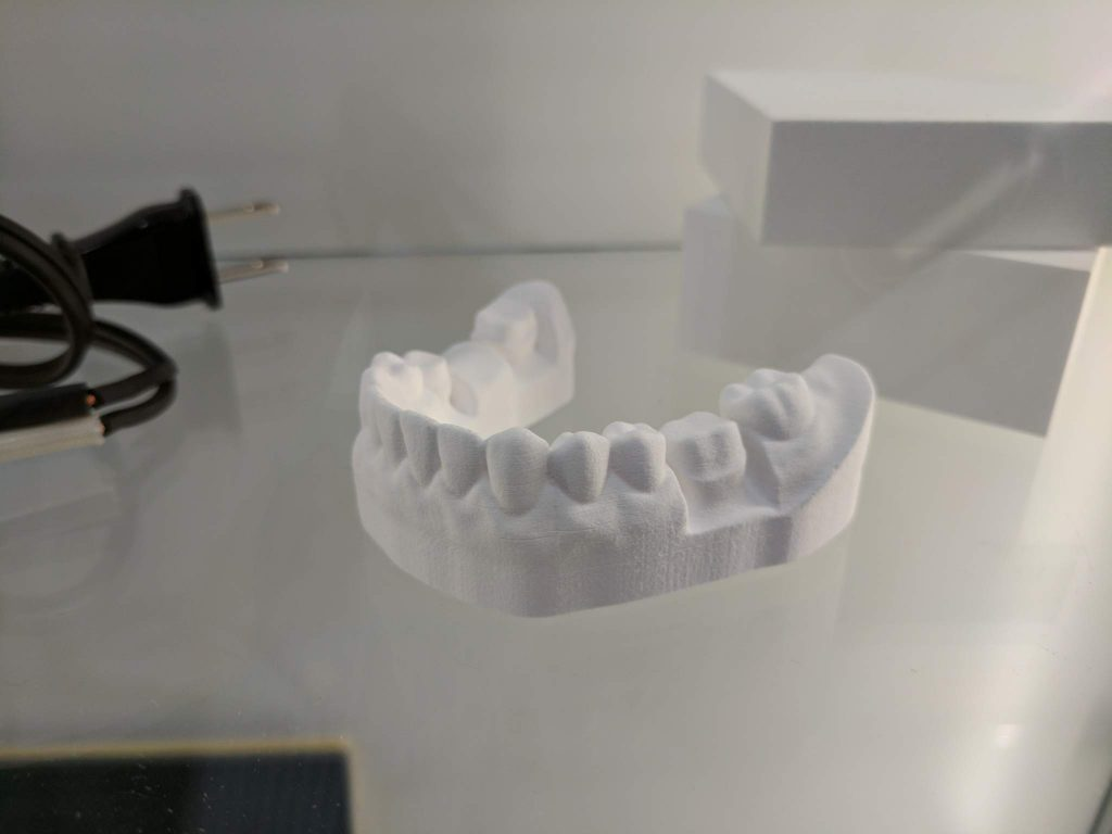 Ceramic dental impression from the Roland AG ceramics printer.