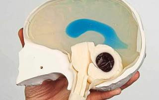 Model of toddler skull. Image via Evening Standard