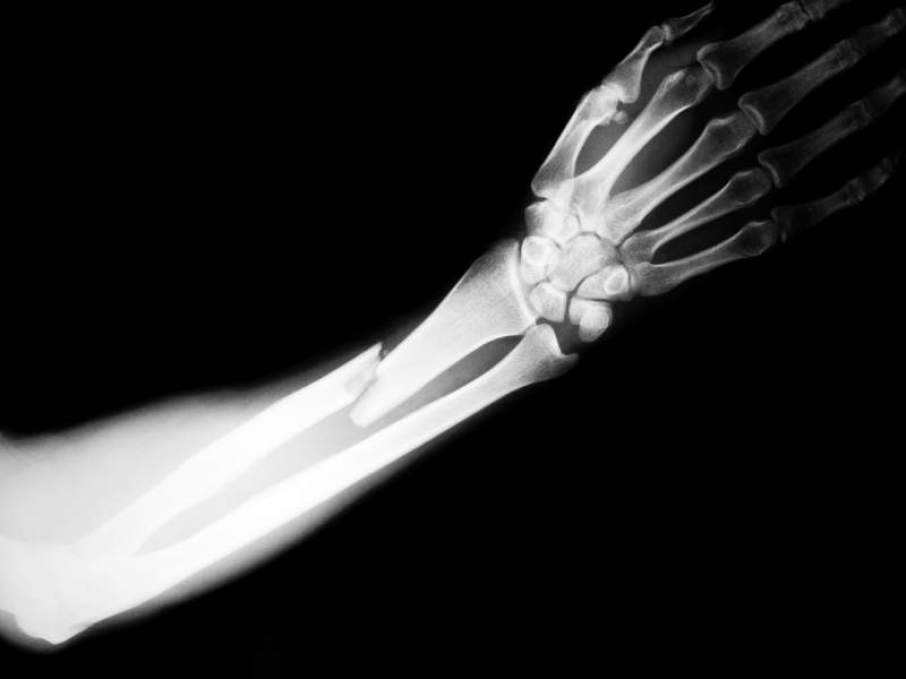Shanghai researchers develop 3D printed fracture fixing ... Xray Arm