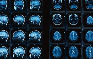 Brain MRI scan photograph by Ken Glasercorbis, via: National Geographic