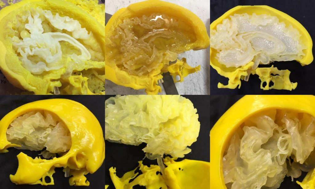 3D printed surgical brain model. Photos via: Stratasys Direct Manufacturing