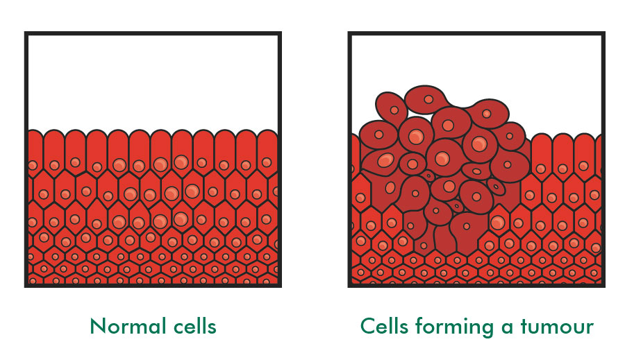 Comparative diagram of normal human cells and those that grow to form a tumor. Image via: Macmillan Cancer Research UK