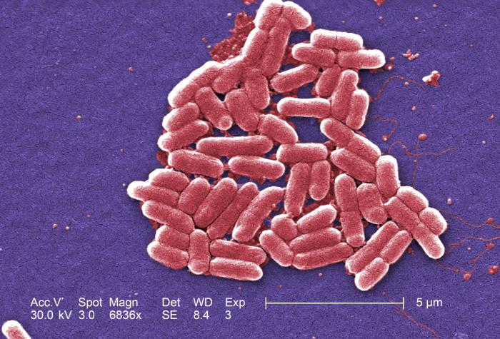 Colored SEM picture of e. coli. Image via: Janice Haney Carr