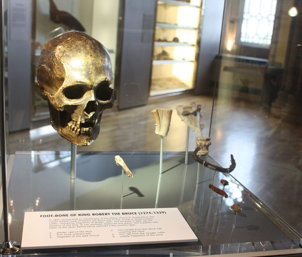 Cast of Robert the Bruce's Skull at the Hungarian Museum in Glasgow. Photo via: wikimedia commons