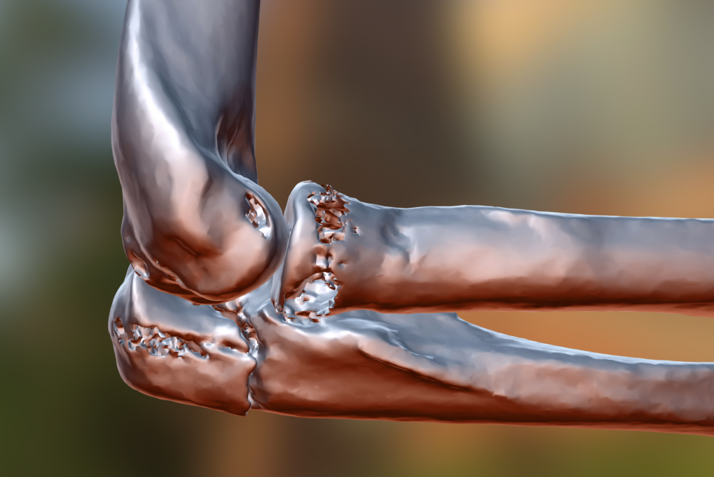 A 3D model of a olecranon fracture in an elbow. Image via: orto3d on Sketchfab