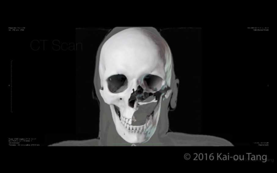 3D model of a skull taken from a patient's CT scan. Screenshot via: Kai-ou Tang