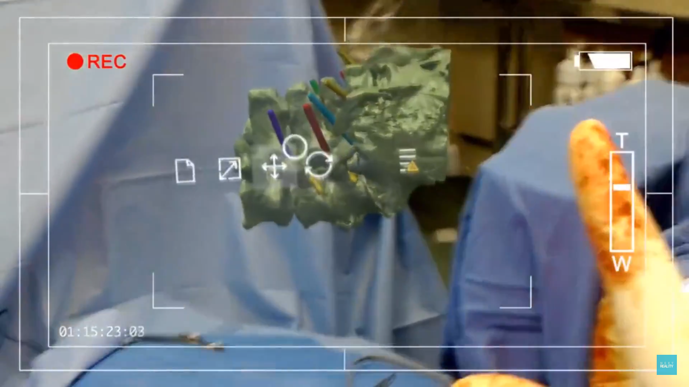 Screenshot of Hololens being used in surgery. Image via NextReality.