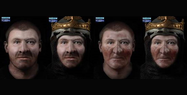 The faces of Robert the Bruce, with (right) and without (left) illness. Image via: LMJU