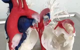 Xiangya Hospital's 3D printed heart model. Image via Xiangya Hospital.