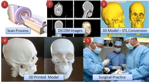 The process of creating 3D printed surgical models. Image via Think3D.