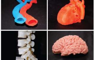 A selection of 3D printed organs from SiMMO3D. Image via SiMMO3D.