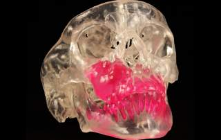 3D Systems SLA skull. Photo via: 3D Systems Healthcare