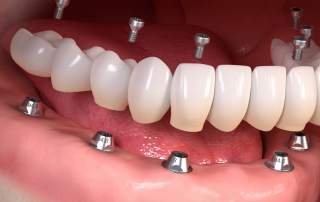 Dental implants. Image via Straumann Holding.