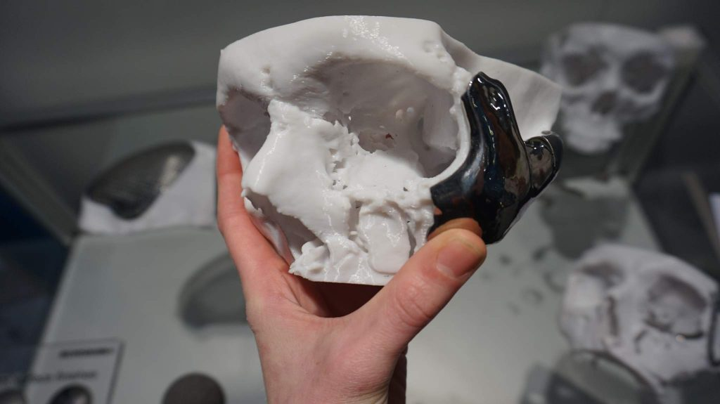 A 3D printed surgical guide used to help skull incisions by Renishaw.