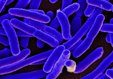 SEM image of e coli from the National Institute of Allergy and Infectious Diseases (NIAID) on Flickr