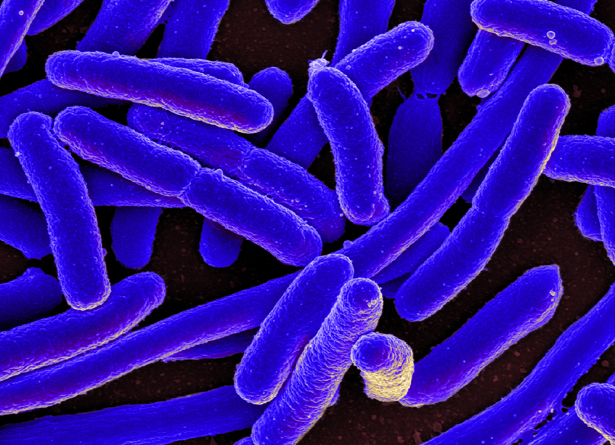 e coli on bathroom surfaces The e coli came from fecal bacteria, which can survive on hands and surfaces for hours researchers from the london school of hygiene & tropical medicine and queen mary, university of london.