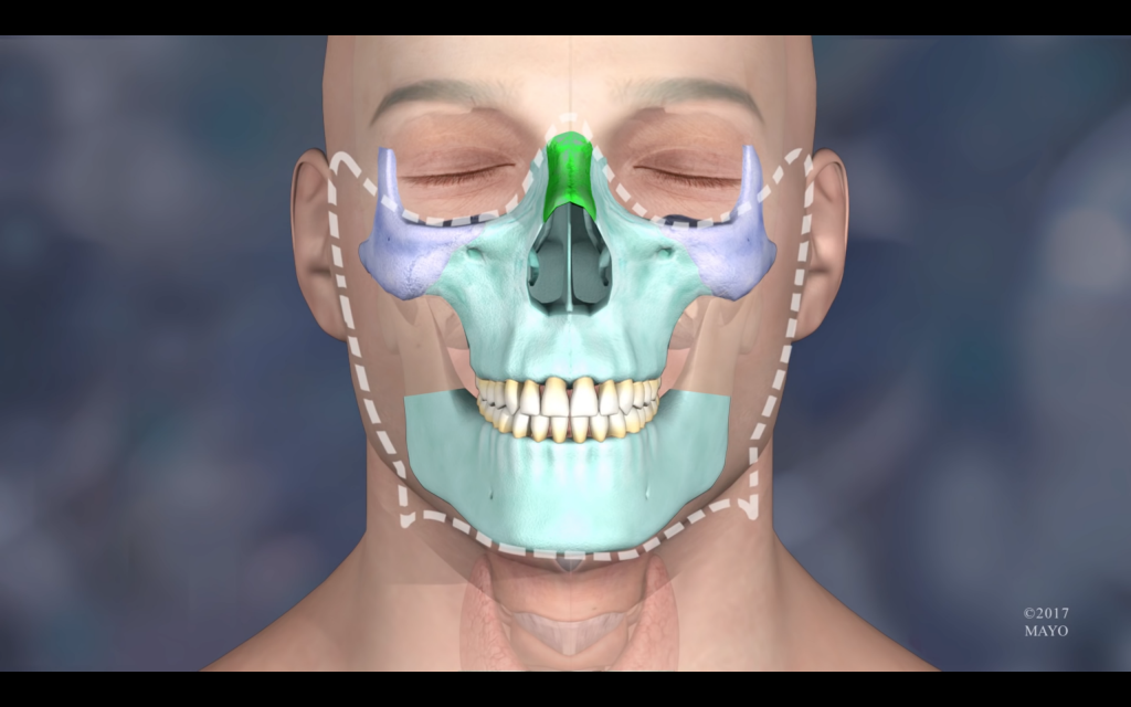 3D render highlighting all the parts that required reconstruction. Image via The Mayo Clinic
