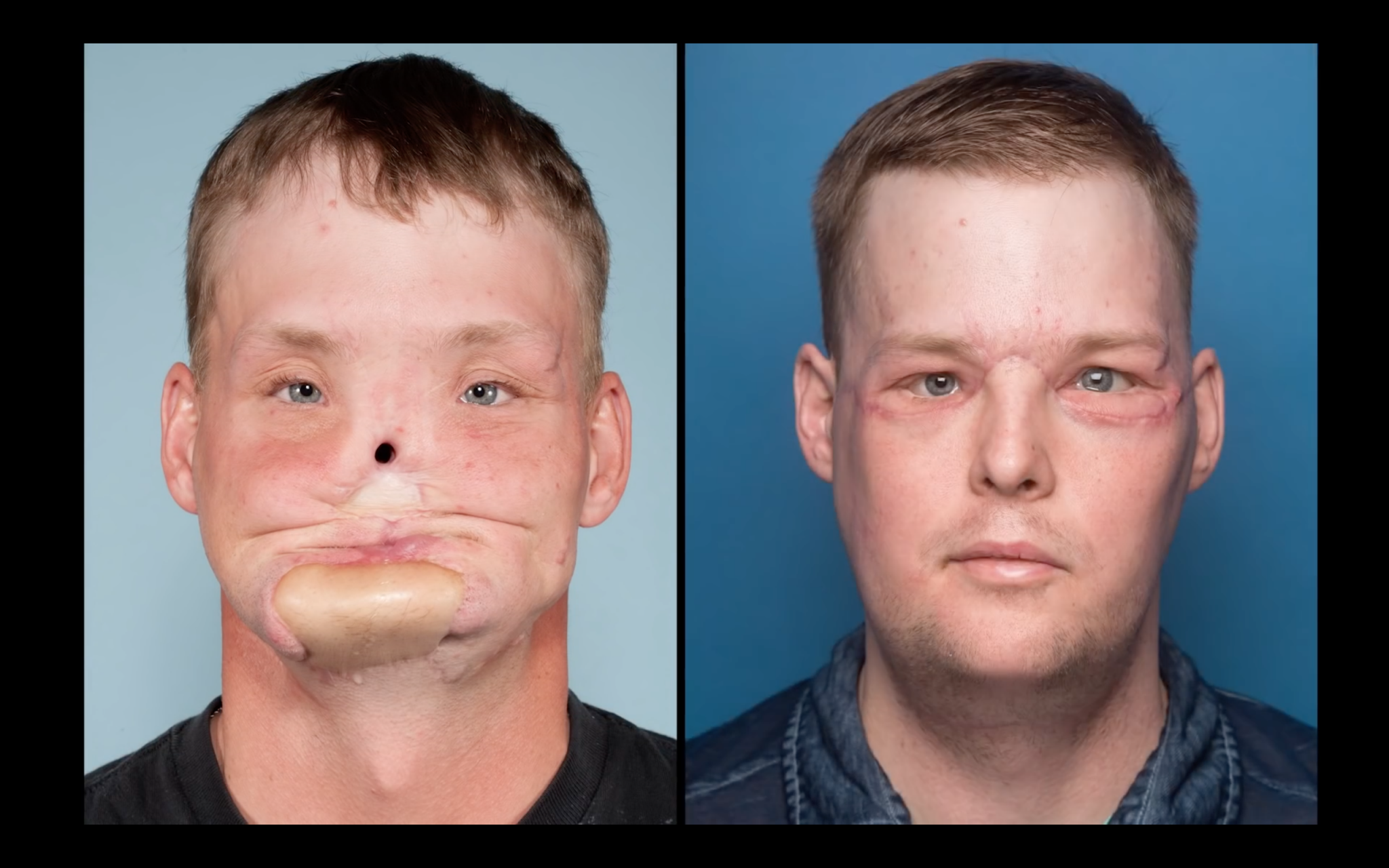 Before and after photos of Andy Sandness' facial transplantation. Photos via the Mayo Clinic