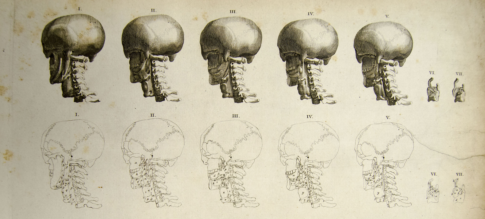 The suture junctions of the human skull can be clearly seen in this anatomical drawing - the wiggling lines on the bottom set of sketches. From Bernhard Siegfried Albinus, Tables of the skeleton and muscles of the human body. Image via the University of Liverpool Faculty of Health & Life Sciences, liverpoolhls on Flickr