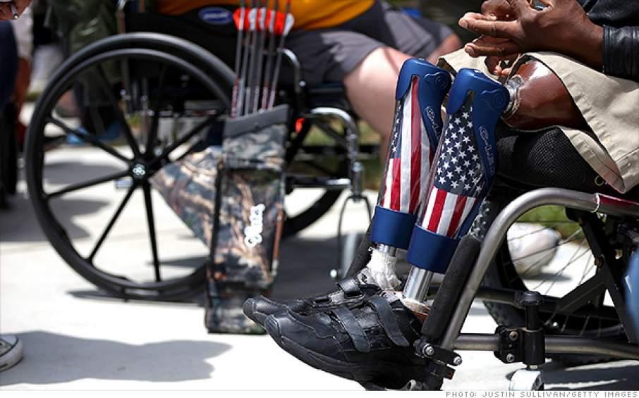 Prosthetic legs of a US Veteran. Photo by Justin Sullivan