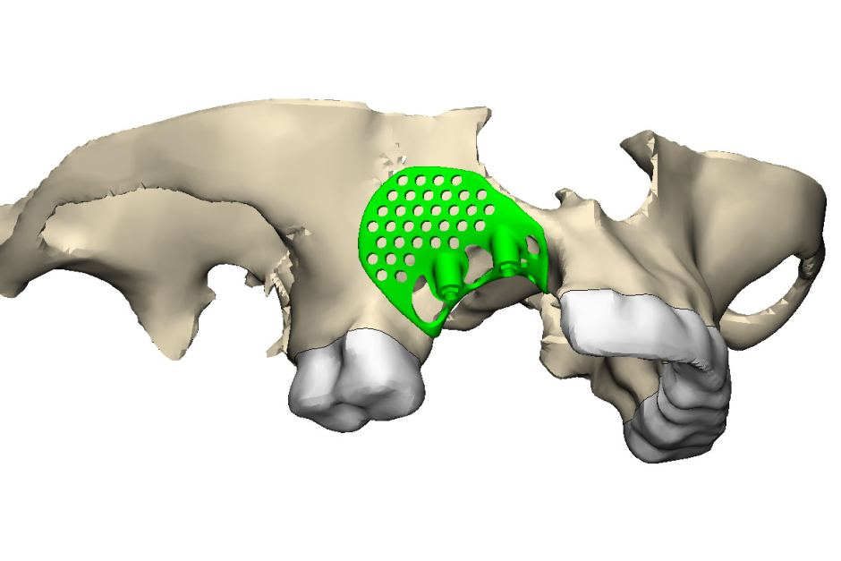 The 3D digital model of Robinson's jaw. Image via Dr George Dimitroulis.