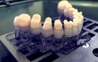 Medical Amp Dental Archives 3d Printing Industry