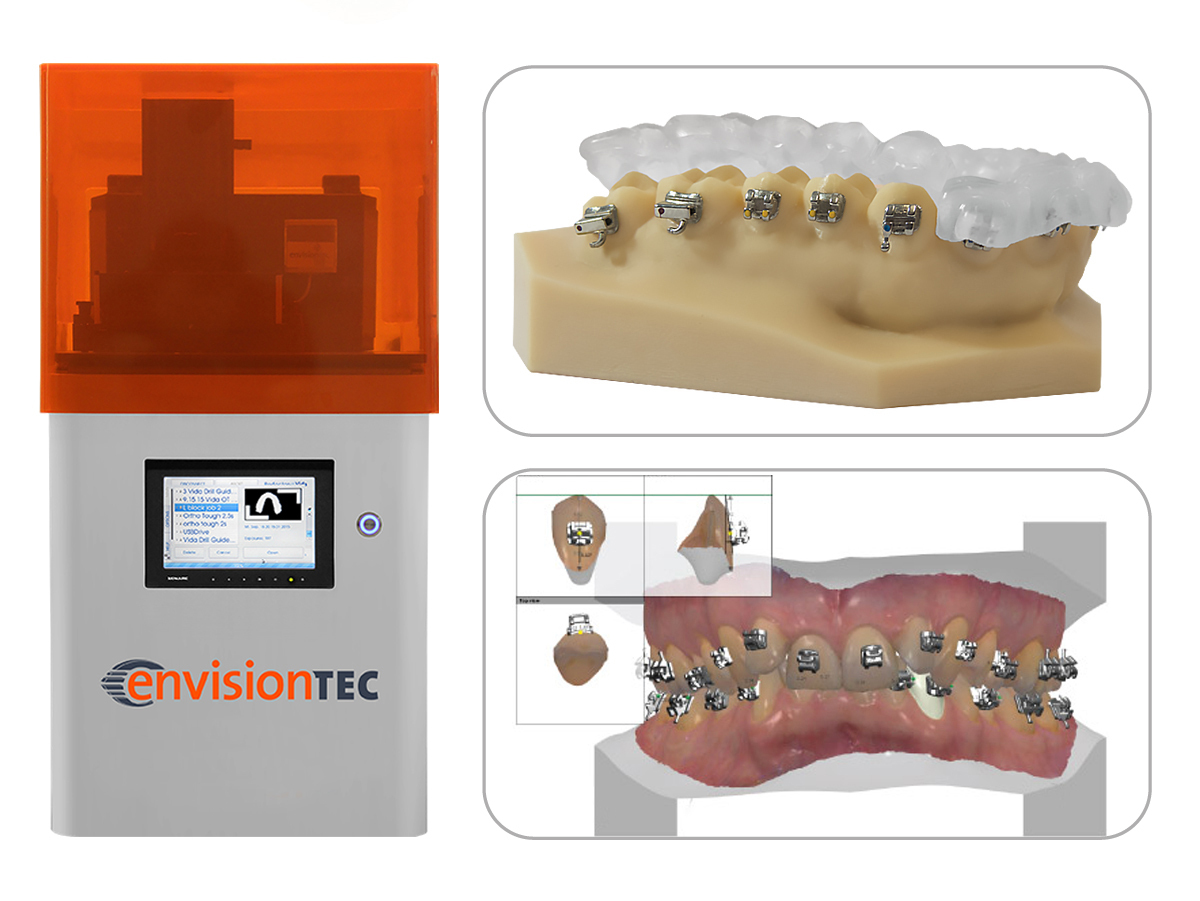 The EnvisionTEC printer and the 3D printed orthodontic brackets. Image via Business Wire.