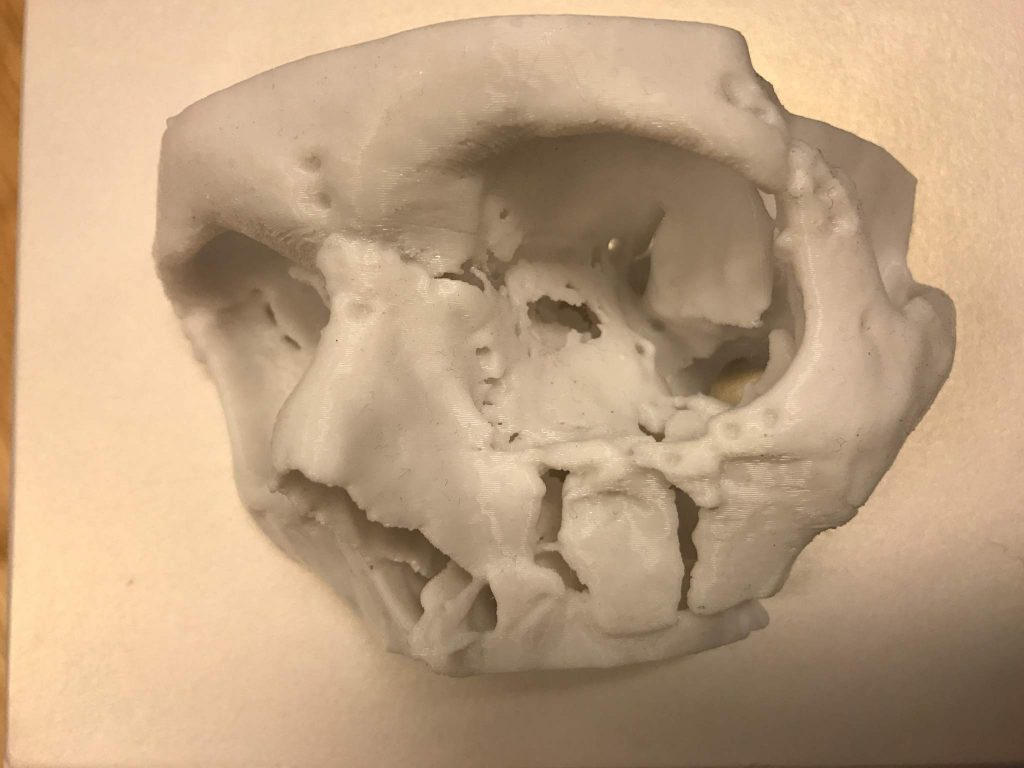 A 3D-printed medical model of a complex mid-face fracture to aid visualisation and treatment planning. Photo via Renishaw.