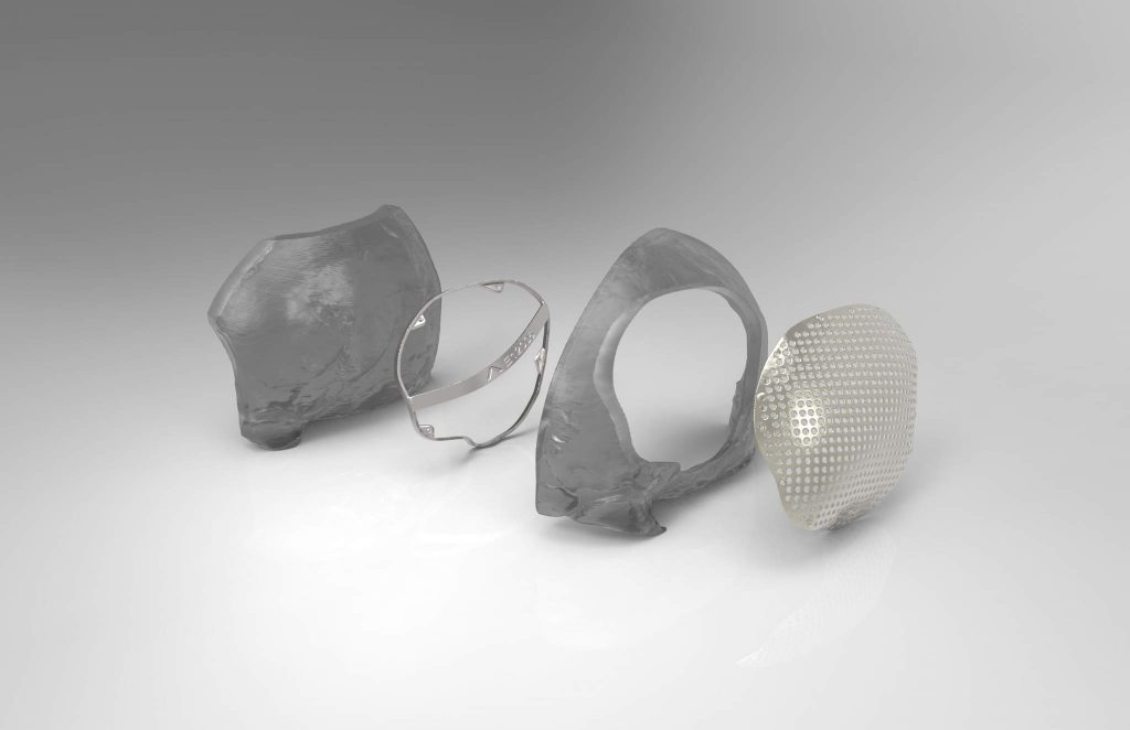 Examples of an additive manufactured titanium cranial plate and surgical guide alongside their medical models, used for a cranioplasty procedure. Photo via Renishaw.