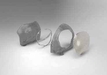 Deconstruction of cranioplasty procedure with 3D printed metal plate. Image via Renishaw.