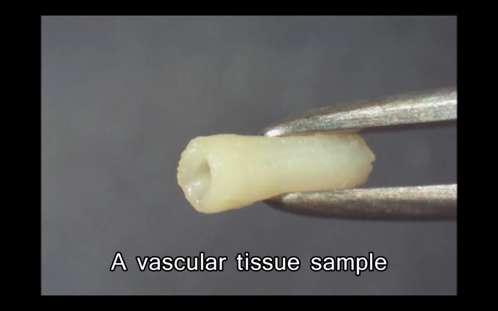 A sample of vascular vessel tissue 3D bioprinted on the Regenova. Photo via Cyfuse Biomedical