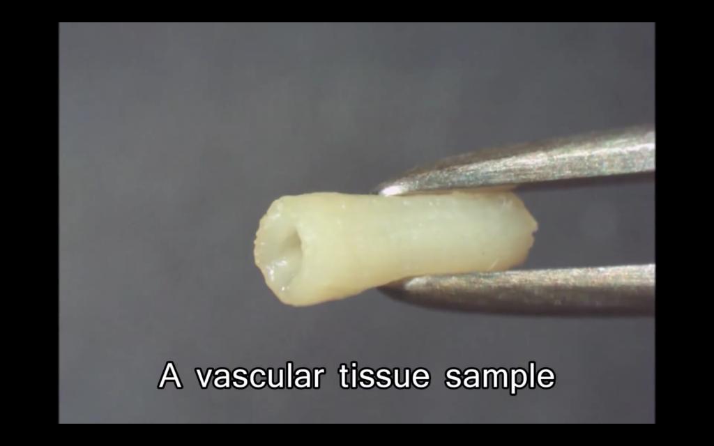 A sample of vascular vessel tissue 3D bioprinted on the Regenova. Photo via Cyfuse Biomedical