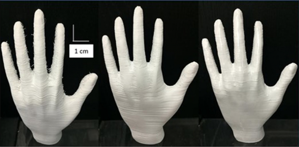 Stages of improvement to a 3D printed hand. Photos via Kensuke Takagishi and Shinjiro Umezu