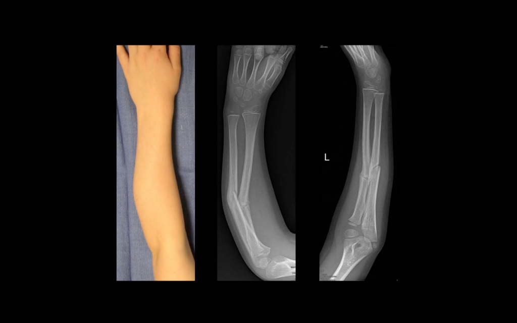 Joos' arm before the operation and corresponding x-rays. Image via Materialise on YouTube