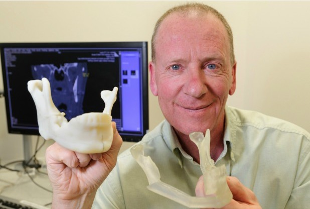 Stephen Waterhouse after the reconstructive surgery with 3D printed molds used to remake his jaw. Photo via The Stoke Sentinel