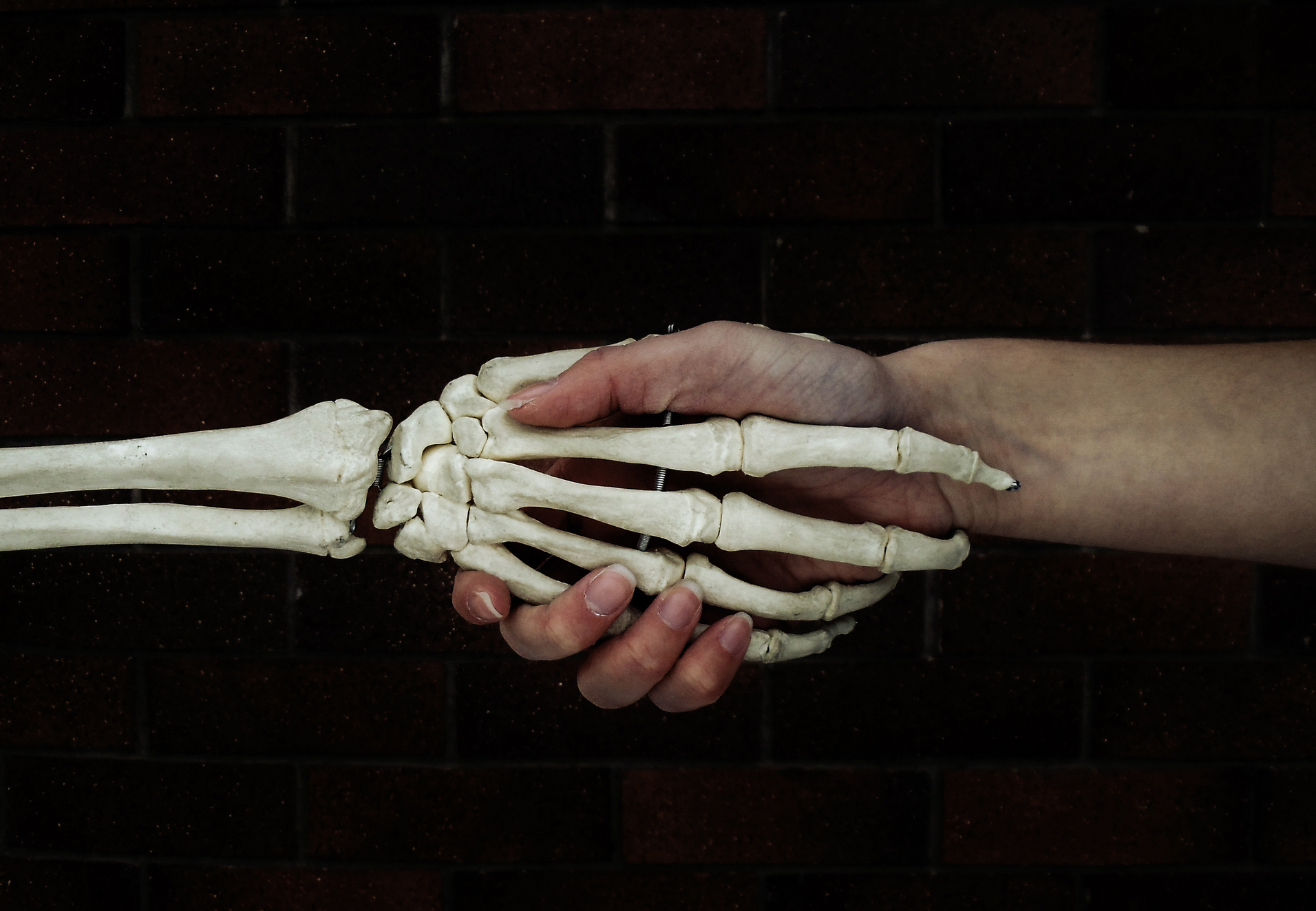 Surgeons use a home-use 3D printer to help in bone fracture operations