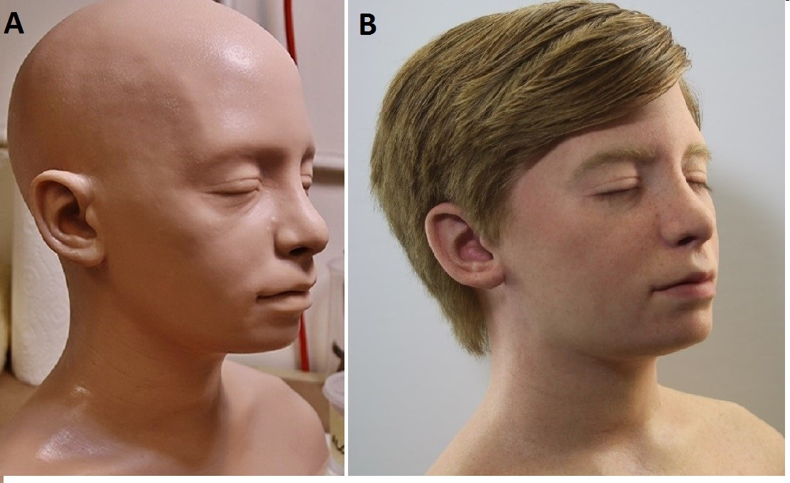 The model which used 3D printing to create. Image via the Journal of Neurosurgery.