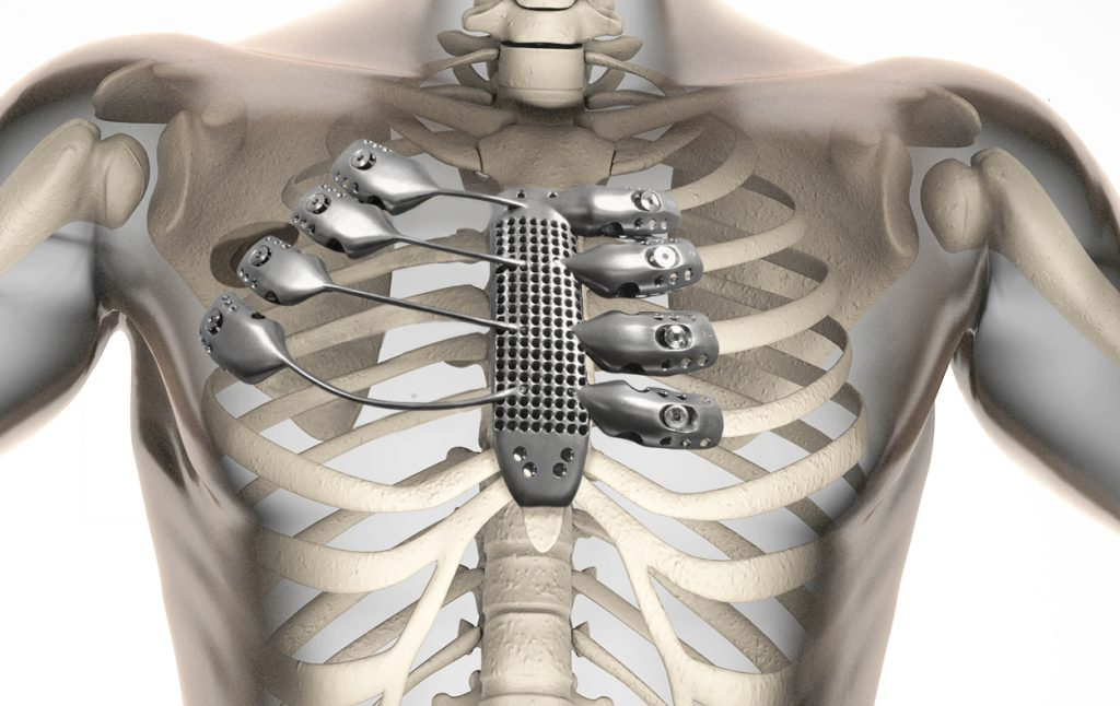 AnatomicsRx 3D printed metal rib cage.